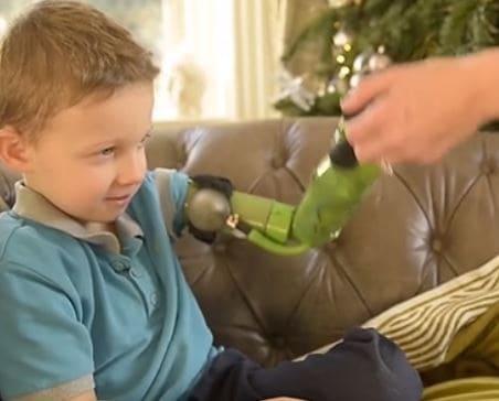 Jacob, un niño ingles que tiene el mismo brazo que Hulk